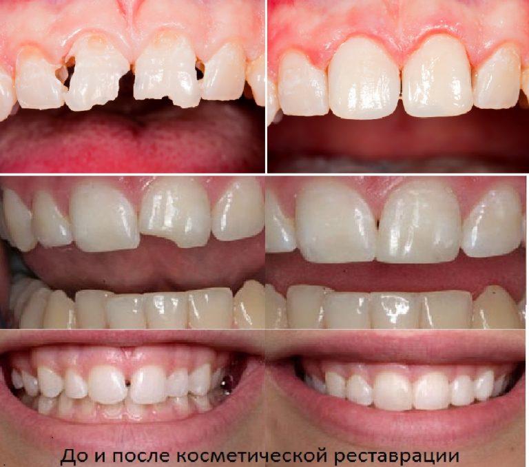Зубы после художественной реставрации